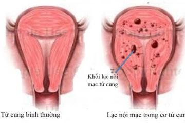 Lạc nội mạc tử cung và nguyên nhân gây bệnh