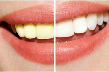 Giải đáp thắc mắc: Làm trắng răng có hại không?