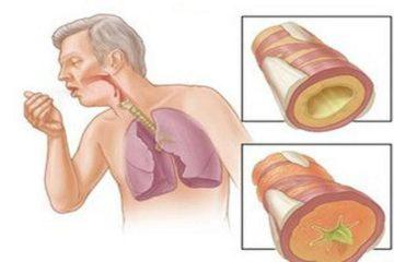 Kỹ thuật mới chẩn đoán nhanh bệnh lao phổi