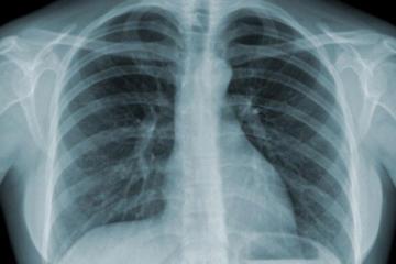 Lao phổi cấp tính