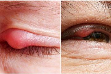 Lẹo mắt – nguyên nhân và cách khắc phục