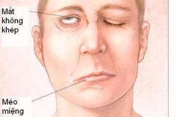 Bệnh liệt mặt và cách phòng ngừa