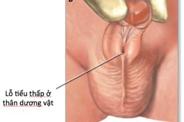 Chẩn đoán và điều trị bệnh lỗ đái thấp