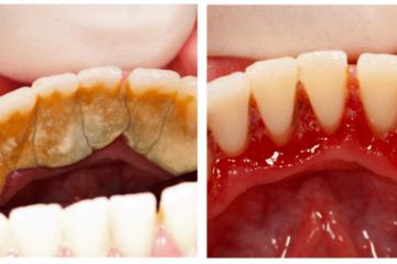 Bí quyết loại bỏ cao răng