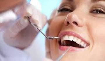 Loại bỏ vôi răng để có hàm răng quyến rũ
