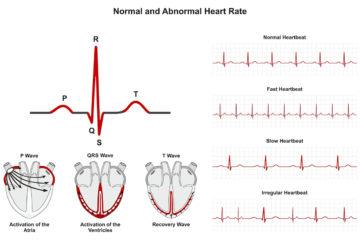 loạn nhịp tim