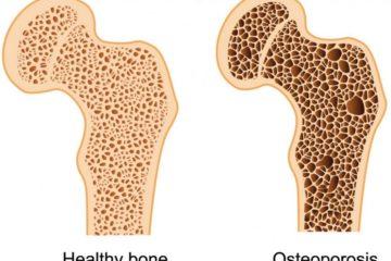 Bệnh nhuyễn xương là gì?
