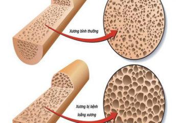 Dinh dưỡng trong bệnh loãng xương