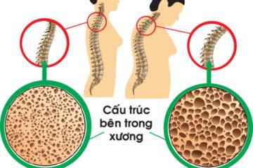 Bệnh loãng xương nguyên nhân và phương pháp phòng chống