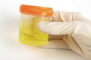 Lời cảnh báo về tình trạng sức khỏe từ nước tiểu