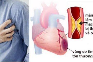 Hội chứng động mạch vành cấp