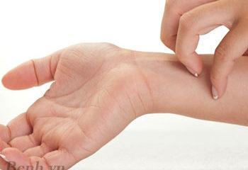 Nguy cơ bệnh nhiễm trùng máu vì viêm da, mụn nhọt ngày hè