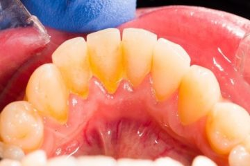 Mảng bám trên răng xin chớ coi thường