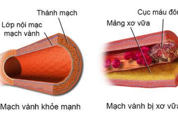 Rối loạn lipid máu và nguy cơ bệnh tim mạch