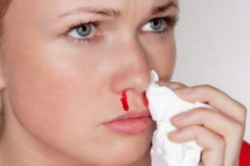 Cấp cứu chảy máu mũi