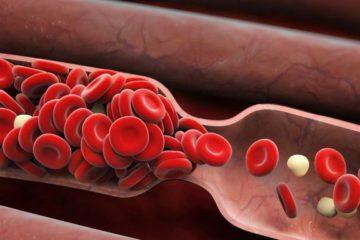 Hiện tượng tăng đông máu trong cơ thể