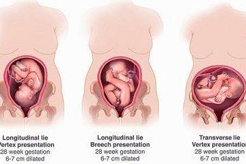 Mẹ bầu nên biết rõ hơn về ngôi thai ngược