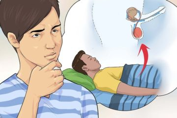 Mộng tinh có phải là bệnh?