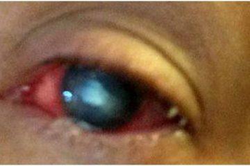 Mở mắt suốt một tuần để chữa bệnh do kính áp tròng gây ra