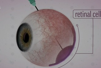 Mỹ điều trị gen để chữa bệnh khiếm thị