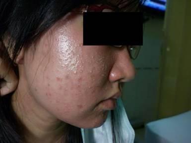 Hỏng da mặt vì mỹ phẩm giả