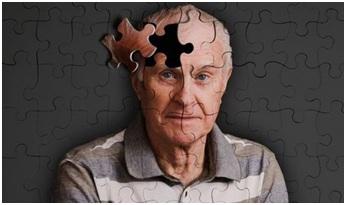 Mỹ phát hiện nguồn gốc biến đối tế bào ở bệnh Alzheimer