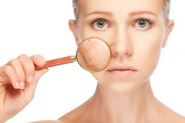 Nguyên nhân và cách chữa trị nám da