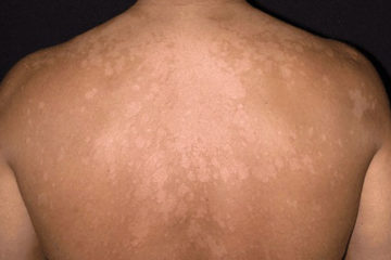 Các bệnh nấm ngoài da