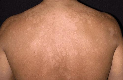 nấm ngoài da