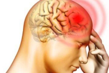 Chẩn đoán một số bệnh viêm màng não – viêm não thường gặp