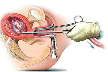 Cách theo dõi các dấu hiệu bất thường sau khi nạo hút thai