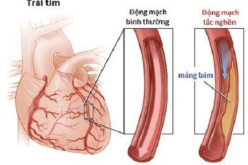 Bệnh động mạch ngoại biên