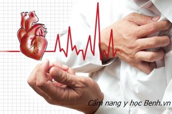 Chuyên gia khuyến cáo ngưng tim do thượng mã phong khó cứu nhất