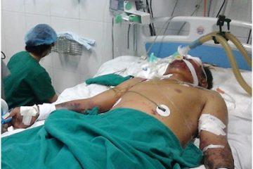 Người đàn ông nhiễm liên cầu lợn sau khi mổ thịt con vật ốm