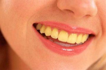 Nguyên nhân khiến răng bị ố vàng và phương pháp khắc phục