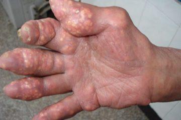 Điều trị nhiễm khuẩn hạt Tô Phi theo hướng dẫn của bộ Y tế