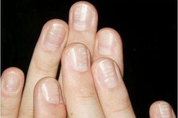 Nhìn móng tay bạn sẽ đoán ngay sức khỏe của trẻ