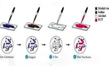 Chẩn đoán xác định loại vi khuẩn bằng nhuộm Gram