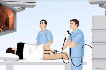 Các bước tiến hành chuẩn bị nội soi đại tràng