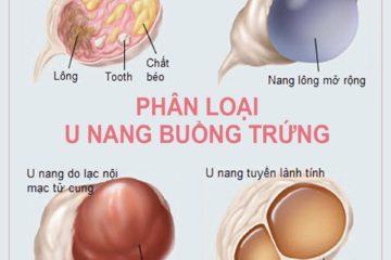 U nang buồng trứng – phân loại, nguyên nhân và điều trị bệnh