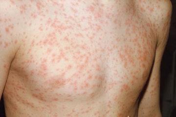 Hội chứng phát ban nhiễm trùng
