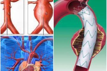 Cẩn trọng với bệnh phồng động mạch