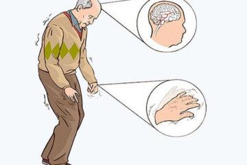 Parkinson bệnh liệt rung của người cao tuổi
