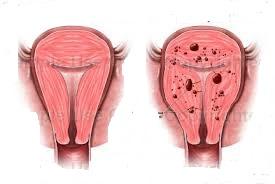 Chữa lạc nội mạc tử cung theo phương pháp mới