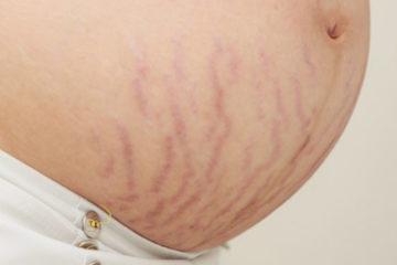 Phương pháp chống rạn da khi mang bầu