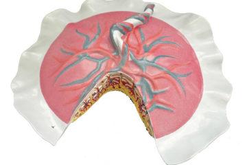 Nguyên nhân, phương pháp xử trí và những nguy hiểm của rau cài răng lược đối với sản phụ