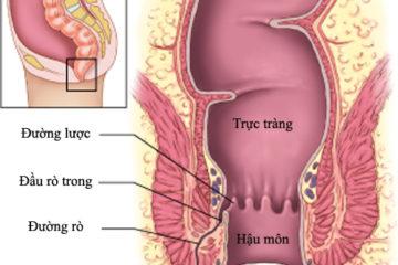 Bệnh rò trực tràng – âm đạo