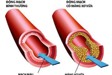 Các biểu hiện đặc trưng của bệnh rối loạn mỡ máu