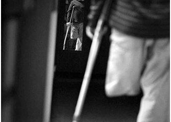 Rối loạn nhận dạng cơ thể: Người bệnh có thể tự cắt các bộ phận của mình