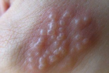 Biểu hiện và tiến triển của bệnh mụn rộp ở sinh dục